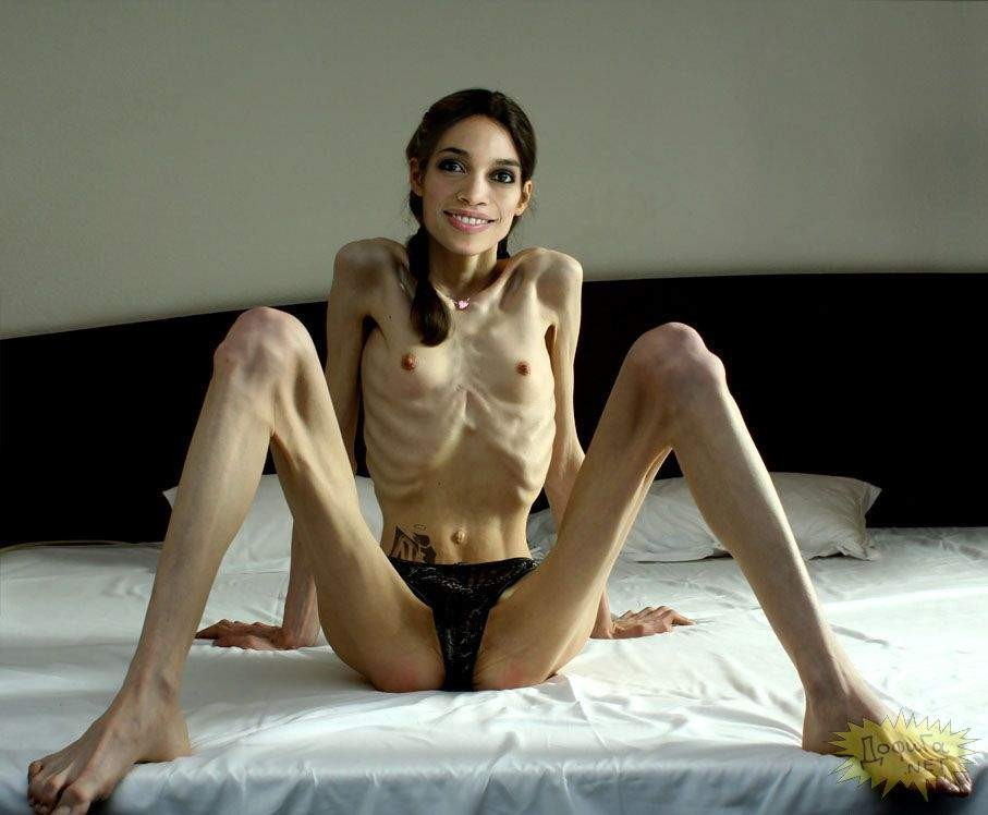 Anorexic Pussy Spread
